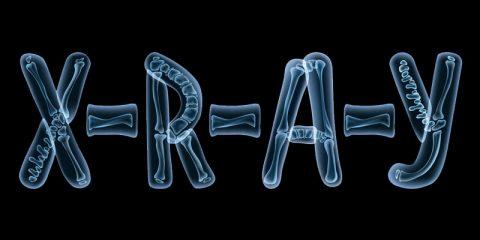 کاربرد اشعه ایکس